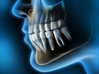 Zahnimplantat 5