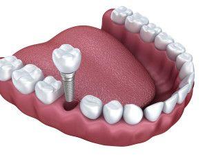 Korona porcelanowa, implant, odbudowa jednego zęba