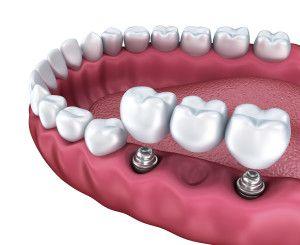 Most porcelanowy na implantach