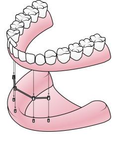 Dolna proteza, belka, implanty