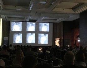 Kongres Implanty w Warszawie